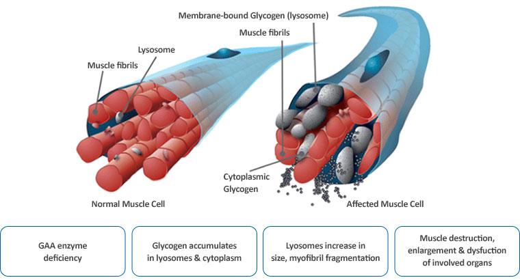 About Pompe Disease